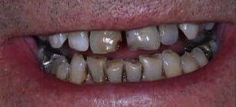 Before veneers Treatment Reading Smiles