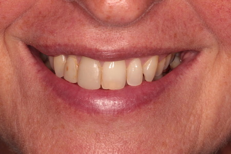 Before veneers Treatment Reading Smiles