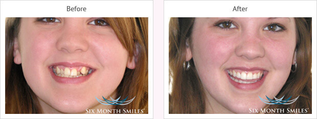 Six month smile before and after case 10