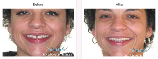 Six month smile before and after case 12