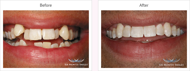 Six month smile before and after case 13