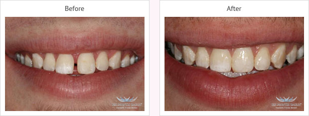 Six month smile before and after case 2 Kent