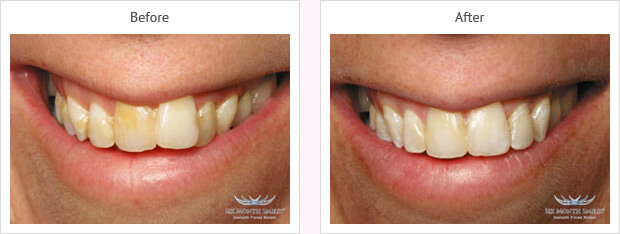 Six month smile before and after case 6