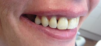 After Veneers Treatment Reading Smiles