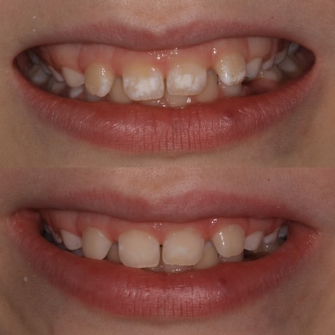 Before & Ater Icon White Spots On Teeth Treatment