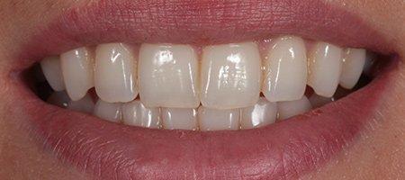 Before & after cosmetic bonding