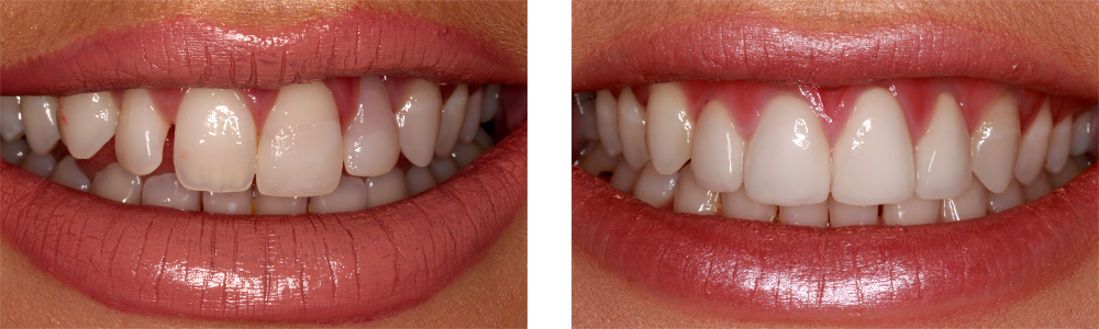 Dental Veneers Reading
