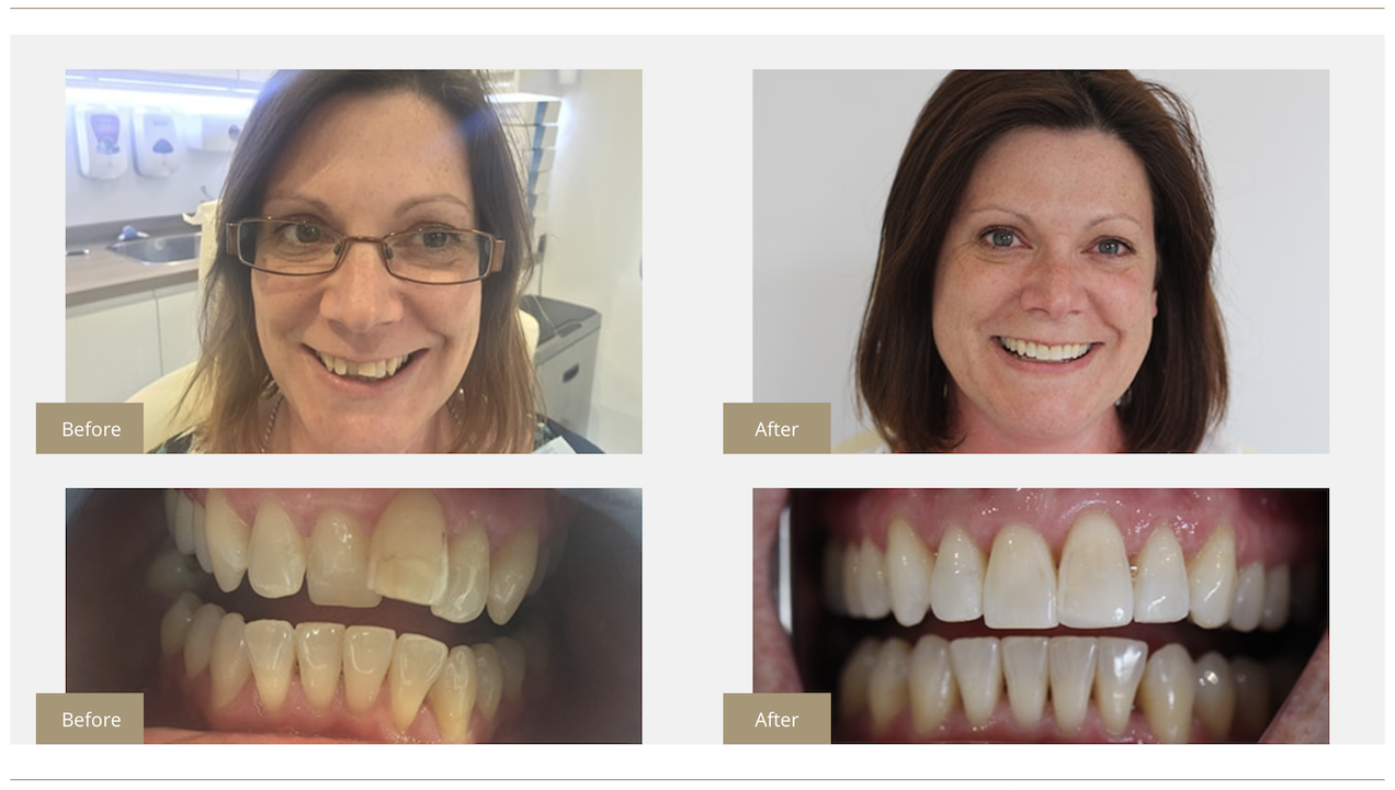 Mikyla's Invisalign Before and After Reading Smiles