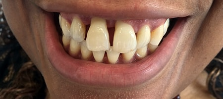 Before cosmetic Treatment Reading Smiles