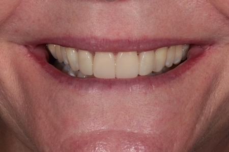 After Smile Makeover Treatment Reading Smiles