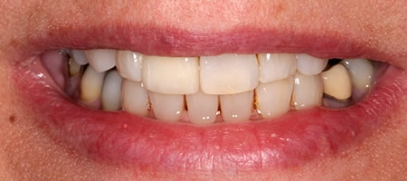 After cosmetic Treatment Reading Smiles