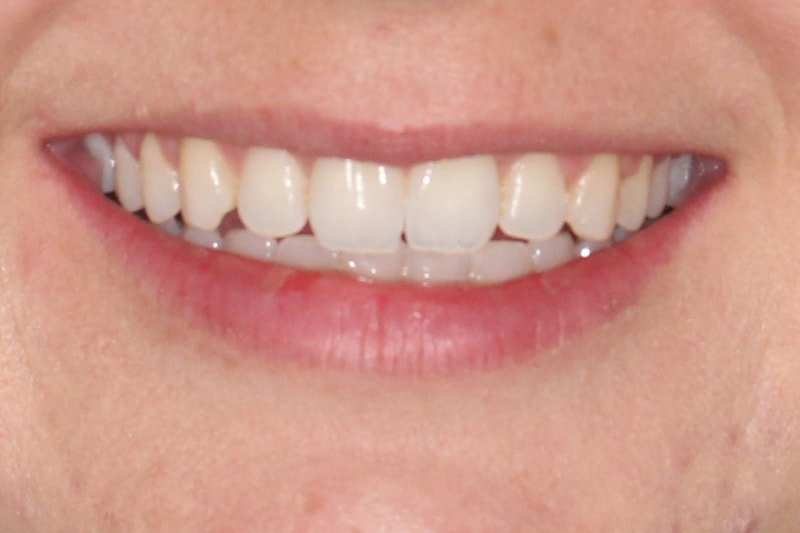 Invisalign Before And After Gap Zara   Before & Af...